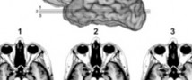 Российские ученые разработали метод наблюдения вживую за клетками мозга
