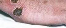 На Алтае вспышка сибирской язвы