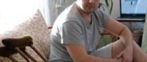У железнодорожника врачи забыли скальпель в колене