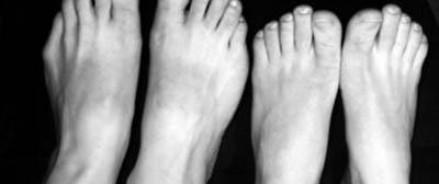 Человеческие ноги на костромском кладбище