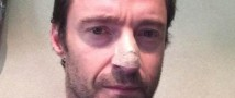 У Хью Джекмана врачи вновь выявили рак кожи