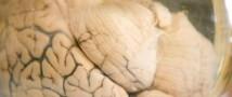 Из Техасского университета похитили банки с человеческими мозгами