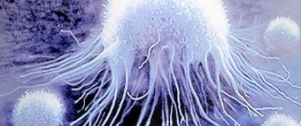 Успеть вовремя: что мешает нам бороться с онкологией