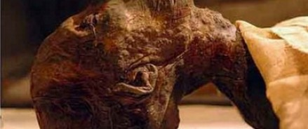 У женщины, жившей в Египте 4200 лет назад, диагностировали рак груди