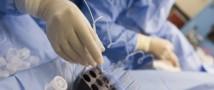 Сенсация в мире медицины: лекарственный препарат впервые введен в мозг при помощи ультразвука