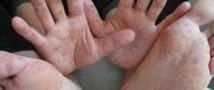 В Минздраве считают, что восемь случаев заражения вирусом Коксаки — это немного