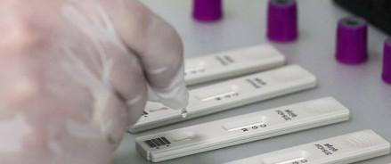 В Казанизапускаютпилотное производство тест-систем на антитела к COVID-19