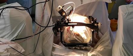 В Красноярском крае болезнь Паркинсона начали лечить при помощи вживления электродов