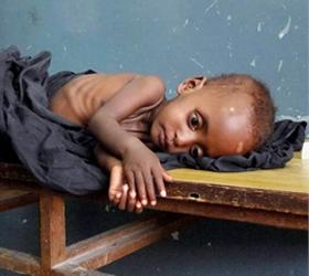 Страшный прогноз:  750 000 жителей Сомали умрут от голода