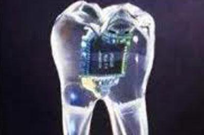 За здоровьем человека будет следить зубной чип