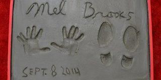 У режиссера комедийного жанра Мела Брукса оказалось шесть пальцев на руке