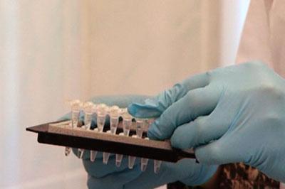В США разработали два теста на наличие Эболы в организме